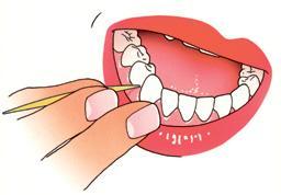 Instructie 2 Tandenstokers