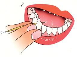 Instructie 4 Tandenstokers