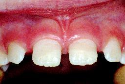 Tanden hersteld uitsnede