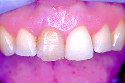 Verkleuring door een dode tand